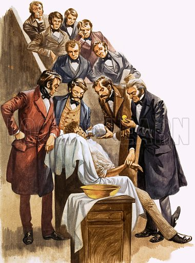 Once Upon a Time… Doctors and dentists two hundred years ago. Original artwork from Treasure no. 296 (14 September 1968). Doctors using nitrous oxide (laughing gas) as an anaesthetic.