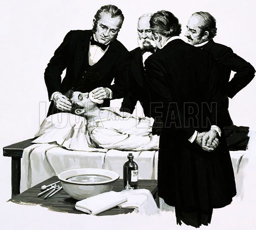 A Good Idea: Putting Paid to Pain. Dr Crawford Long reders a student unconscious before performing an operation. Original artwork from Look and Learn no. 702 (28 June 1975).