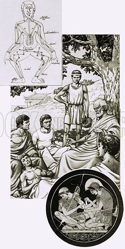 Stay Away From the Doctor. (Main pic) Hippocrates with his students; (top) an ancient drawing of Chinese acupuncture points; (bottom) part of a Greek bowl showing Achilles binding a comrade's wound. Original artwork from Look and Learn Book 1984.