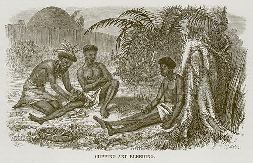 Cupping and Bleeding. Illustration for The Natural History of Man by JG Wood (George Routledge, 1868).