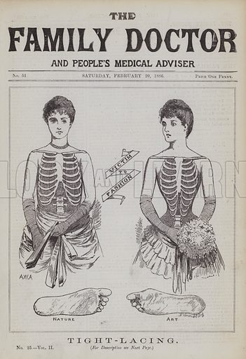 Tight-Lacing. Illustration for The Family Doctor and People's Medical Adviser, Vol II(George Purkess, 1886).