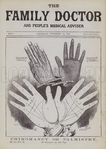 Chiromancy or Palmistry. Illustration for The Family Doctor and People's Medical Adviser, Vol II(George Purkess, 1886).