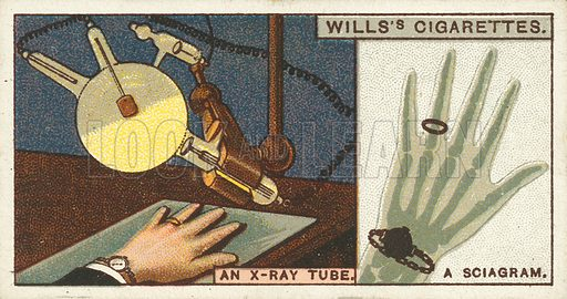 "An X-ray tube, a Sciagram. Illustration for one of a series of cigarette cards on the subject of ""Do You Know"" published by Wills's Cigarettes, early 20th century."