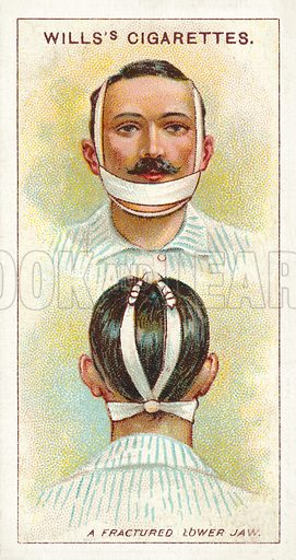 A fractured lower jaw. Illustration for one of a series of cigarette cards on the subject of First Aid published by Wills's Cigarettes, early 20th century.