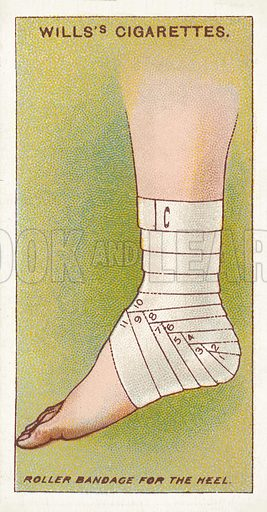 Roller bandage for the heel. Illustration for one of a series of cigarette cards on the subject of First Aid published by Wills's Cigarettes, early 20th century.