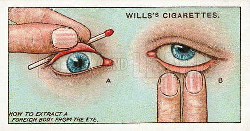 How to extract a foreign body from the eye. Illustration for one of a series of cigarette cards on the subject of First Aid published by Wills's Cigarettes, early 20th century.