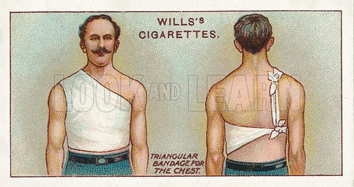 Triangular bandage for the chest. Illustration for one of a series of cigarette cards on the subject of First Aid published by Wills's Cigarettes, early 20th century.