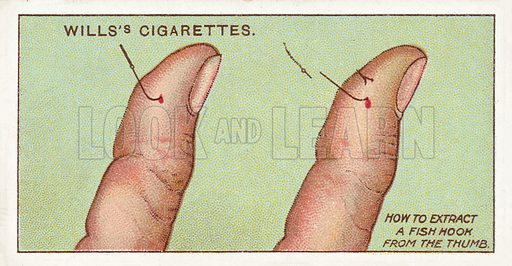 How to extract a fish hook from the thumb. Illustration for one of a series of cigarette cards on the subject of First Aid published by Wills's Cigarettes, early 20th century.