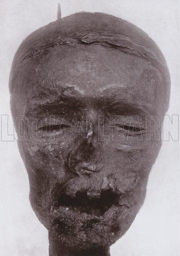 The Wilkinson Head