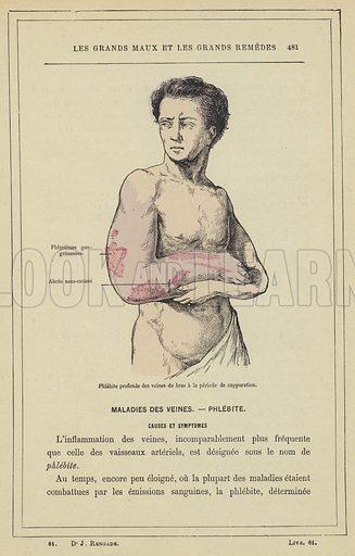 Phlebite profonde des veines du bras a la periode de suppuration. Illustration for Les Grands Maux et Les Grands Remedes by J Rengade (Librairies Illustree, c 1890).