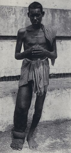 Man with a grotesquely swollen leg caused by lymphatic filariasis, Cochin, India. Illustration for India, Land of the Black Pagoda by Lowell Thomas (Hutchinson, 1931). Photographs by H A Chase and the author.