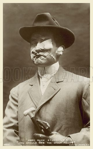 Man with facial injuries. Postcard, early 20th century.