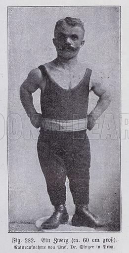 Dwarfism: 60 cm tall man from Prague. Illustration from Universum des Himmels, der Erde und des Menschen (F E Bilz, Dresden-Radebeul and Leipzig, c1925).