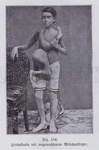Indian boy with the conjoined body of a girl twin. Illustration from Universum des Himmels, der Erde und des Menschen (F E Bilz, Dresden-Radebeul and Leipzig, c1925).