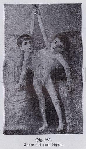 Giacomo and Giovanni Battista Tocci, Italian conjoined twins. Illustration from Universum des Himmels, der Erde und des Menschen (F E Bilz, Dresden-Radebeul and Leipzig, c1925).