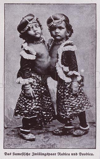 Radica and Doodica, Indian conjoined twins. Illustration from Universum des Himmels, der Erde und des Menschen (F E Bilz, Dresden-Radebeul and Leipzig, c1925).