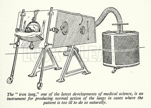 """The """"iron lung,"""" one of the latest developments of medical science, is an instrument for producing normal action of the lungs in cases where the patient is too ill to do so naturally. Illustration for General Knowledge Course (Odhams, c 1945)."""