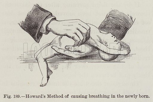 Howard's Method of causing breathing in the newly born. Illustration for The Household Physician by J M'Gregor-Robertson (Blackie, c 1870).