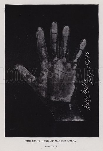 The right hand of Madame Melba
