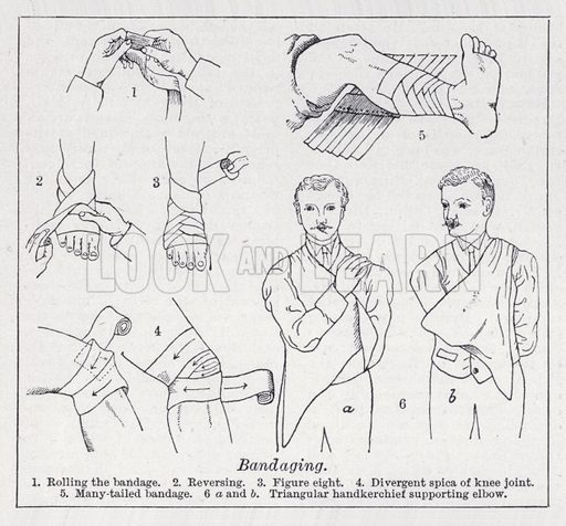 Bandaging. Illustration for The Harmsworth Encylopaedia (c 1922).