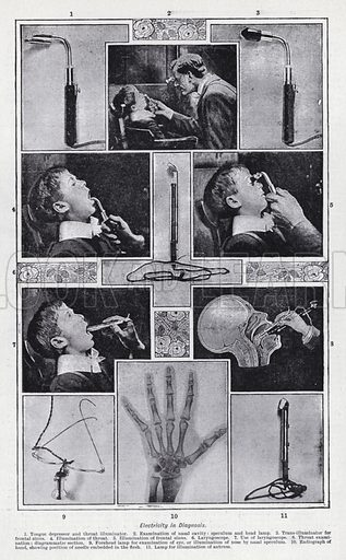 Eelctricity in diagnosis. Illustration for The Harmsworth Encylopaedia (c 1922).