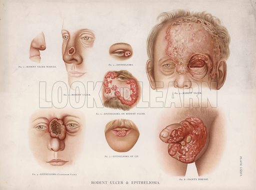 Rodent Ulcer and Epithelioma. Illustration for Atlas of the Diseases of the Skin by H Radcliffe Cricker (Young J Pentland, c 1890).