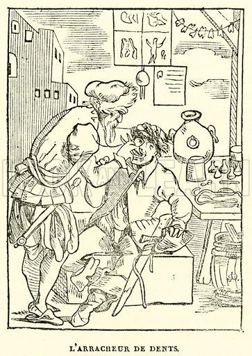 L'arracheur de dents. Illustration for Le Magasin Pittoresque (1836).