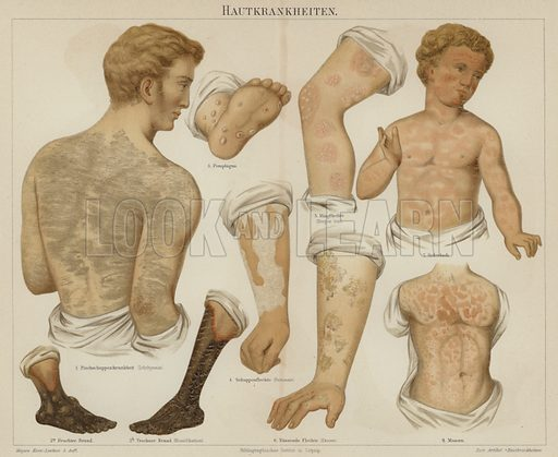 Skin disorders. Illustration from Meyer's Konversations-Lexicon, c1895.