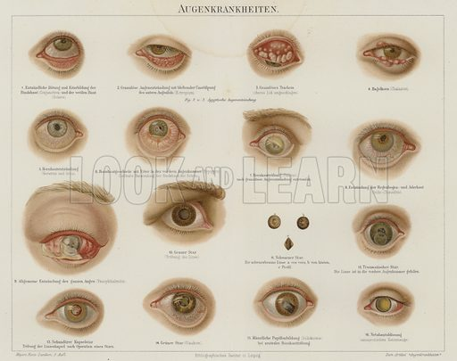 Eye disorders. Illustration from Meyer's Konversations-Lexicon, c1895.