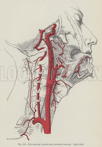 The internal carotid and vertbral arteries, right side. Illustration for Gray's Anatomy, ie Anatomy, Descriptive and Surgical by Henry Gray, with drawings by HV Carter and others (Lea Brothers, 1893).