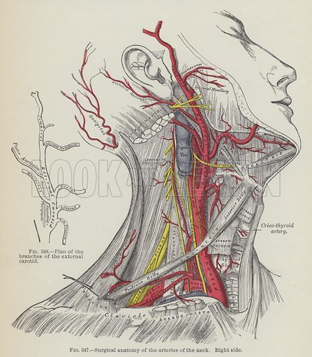 Surgical anatomy of the arteries of the neck, right side. Illustration for Gray's Anatomy, ie Anatomy, Descriptive and Surgical by Henry Gray, with drawings by HV Carter and others (Lea Brothers, 1893).