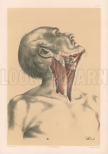 The Head and Neck. Surface View of the Neck in front of the Sterno-Mastoideus Muscle. Illustration for Illustrations of Dissections by George Viner Ellis and G H Ford (c 1870).