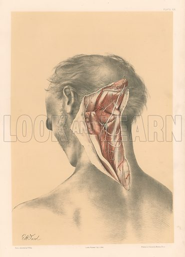 The Head and Neck. A Deep View of the Back of the Neck. Illustration for Illustrations of Dissections by George Viner Ellis and GH Ford (c 1870).