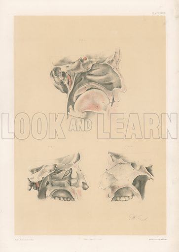 The Head and Neck. Nose Cavity with the Boundaries and Openings into it. Illustration for Illustrations of Dissections by George Viner Ellis and GH Ford (c 1870).