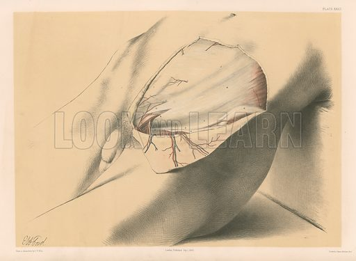 The Abdominal Parietes. First View of the Abdominal Wall in the Inguinal Region. Illustration for Illustrations of Dissections by George Viner Ellis and GH Ford (c 1870).