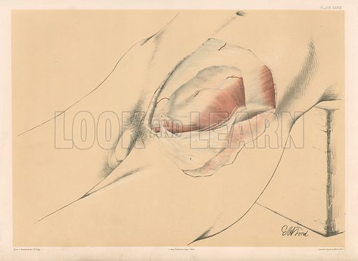 The Abdominal Parietes. Second View of the Abdominal Wall in the Inguinal Region. Illustration for Illustrations of Dissections by George Viner Ellis and GH Ford (c 1870).