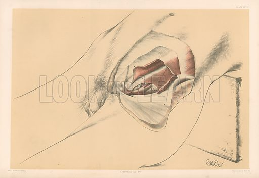 The Abdominal Parietes. Third View of the Abdominal Wall in the Inguinal Region. Illustration for Illustrations of Dissections by George Viner Ellis and GH Ford (c 1870).