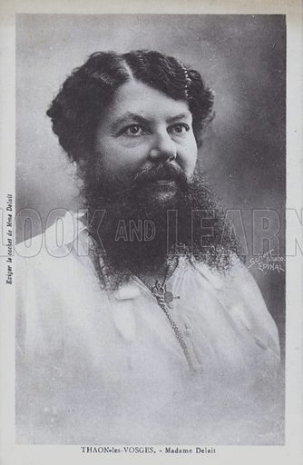 Clementine Delait, a bearded lady who ran a cafe at Thaon-les-Vosges, Lorraine, France