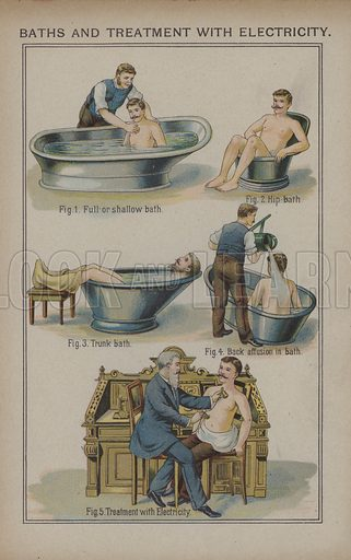 Baths and treatment with electricity.