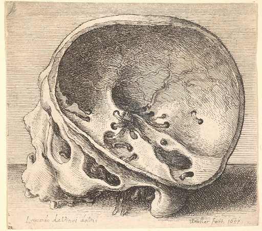Sectioned skull in profile to left with the left side of the cranium removed (1651). Accession number: 17.50.18-103.