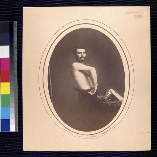 Shirtless man stands sideways displaying right forearm, brace lies on tabletop.]. Date: 1861–1871. Collection: United States Sanitary Commission records, Condensed Historical Matter, Photographs, prints and drawings. Image ID: 1150164.