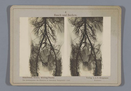 X-ray of blood vessels in the abdomen and loins. Date: 1917. Object ID: RP-F-F26536.