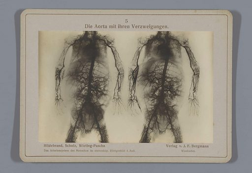 X-ray of the aorta and its branches to other blood vessels. Date: 1917. Object ID: RP-F-F26537.