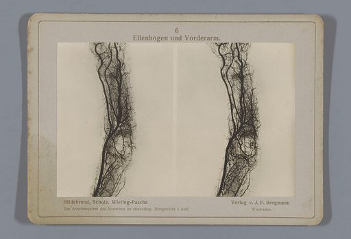 X-ray of blood vessels in the elbow and forearm. Date: 1917. Object ID: RP-F-F26538.
