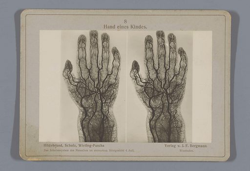 X-ray of blood vessels in a child's hand. Date: 1917. Object ID: RP-F-F26540.