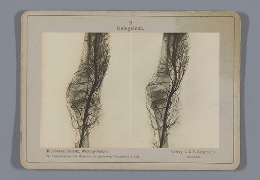 X-ray of the blood vessels in a knee joint. Date: 1917. Object ID: RP-F-F26541.