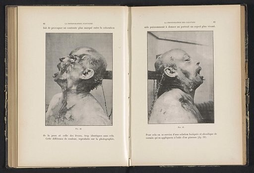 Head of a dead man. Date: c 1893 – in or before 1903. Object ID: RP-F-2001-7-117-34.