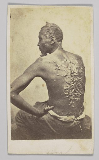 """Carte-de-visite of a formerly enslsaved man identified only as Private Gordon. Gordon is seated wearing trousers and no shirt. Facing the camera is his bare back, with severe raised scars from just above his shoulder blades to his lower back. He head is facing to the left and can be seen in profile while his left hand is resting on his left hip. Written on the back is """"FROM LIFE, Taken at Baton Rouge, La. April 27, 1863 / Camp Parapet, La. / Augst. 4th 1863 / Colonel, / I have found a large number of the four hundred contrabands examined by me to be as badly lacurated as the specimen represented in the enclosed photograph. / Very respectfully Yours, / JW Mercer / Asst. Surgeon 47th MV"""". There is also a stamp in black ink which states: """"FacSimile of original Official Report to Col. LB Marsh."""". Date: 1860s. Record ID: nmaahc_2011.155.54."""