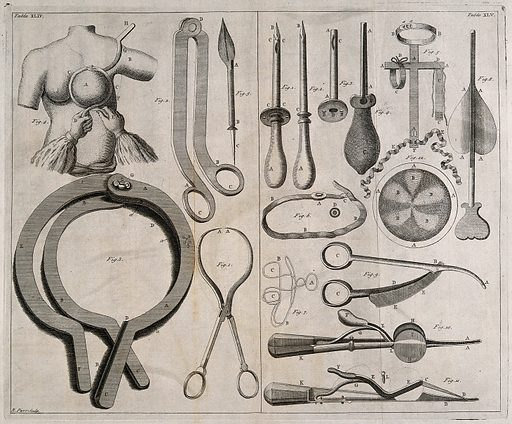 Surgical instruments and a patient having her breast measured. Engraving with etching by R Parr. Surgical instruments and apparatus. Contributors: R Parr (active 1736–1751). Work ID: v4tsshug.
