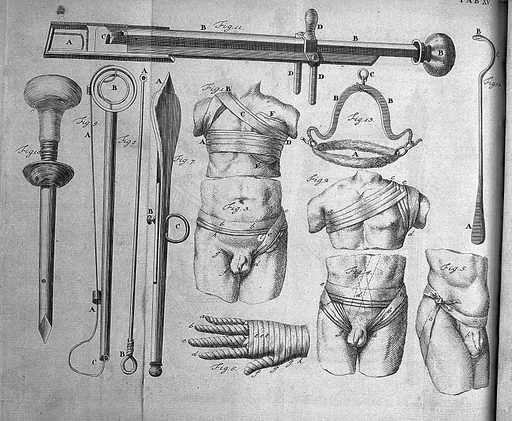 S Mihles, The elements of surgery, 1764. Showing different methods of bandaging and supports. Work ID: ja5xbq6h.
